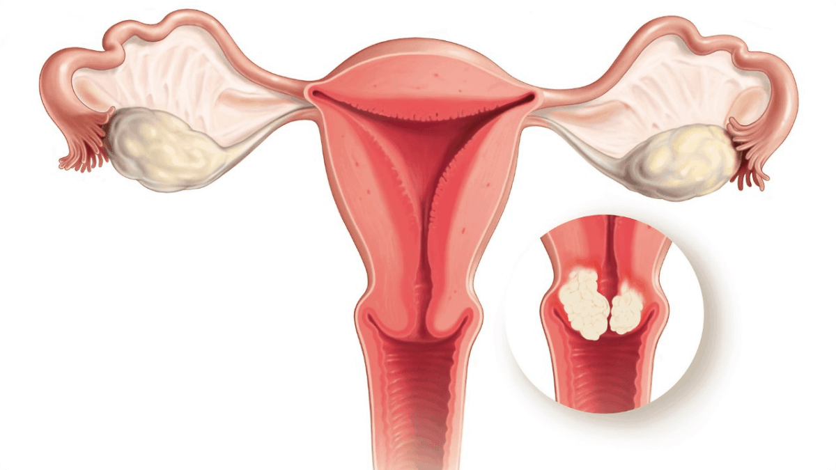 Cervical-Cancer-1200x675.png